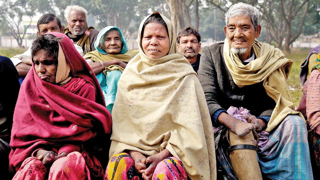 The Divorce Bill: De-stigmatising leprosy sufferers