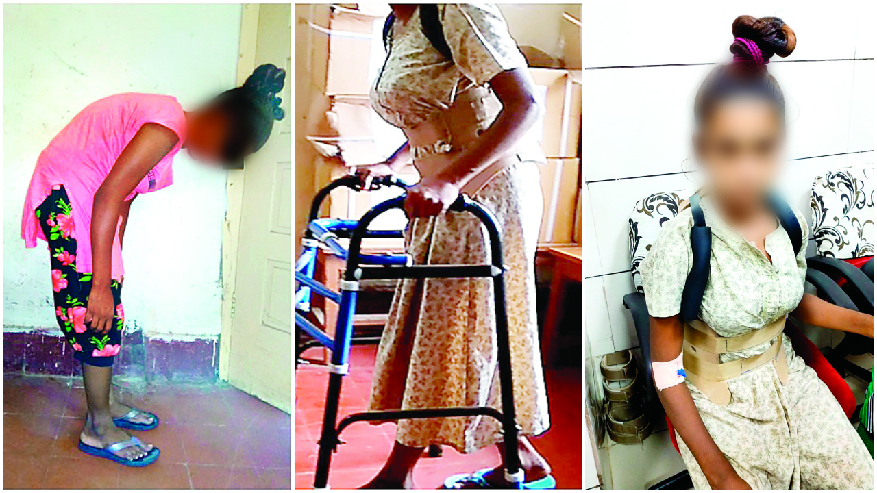 Surat woman with 80 degree bent spine gets new life